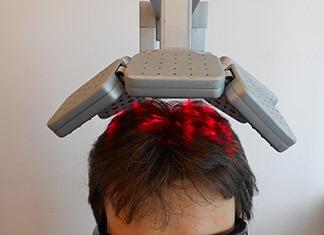 Terapia-laser-capelli