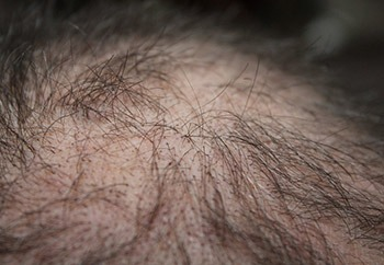 capelli-diradati