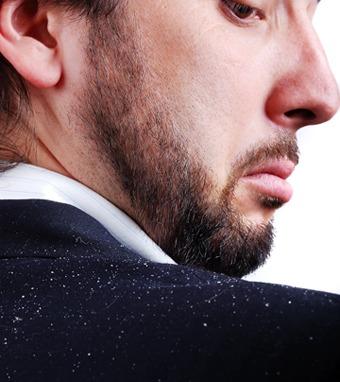 forfora-secca-prurito-capelli