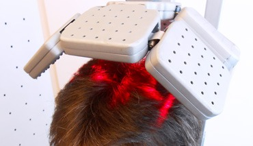 laser capelli ricrescita