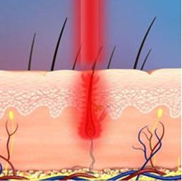 trattamento tricologico laser
