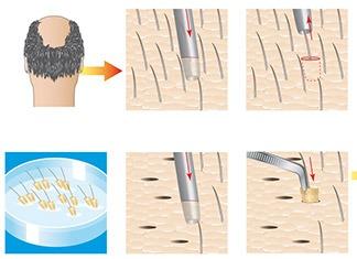 Autotrapianto-capelli-tecnica-FUE