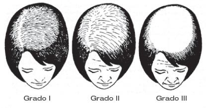 Maschera per capelli da carbonato di sodio e sale per