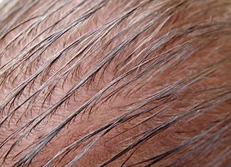 capelli uomo unti