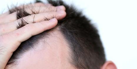 Alopecia-seborroica