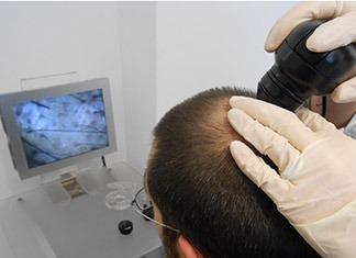 Microcamera-capelli