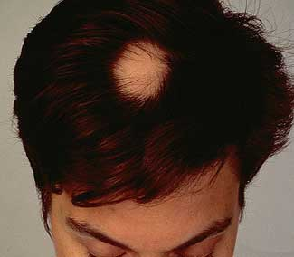Alopecia a chiazze