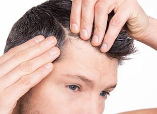 Stempiatura-diradamento-capelli