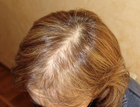 Taglio di capelli per donne con pochi capelli