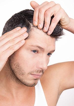 stempiatura-capelli-diradamento