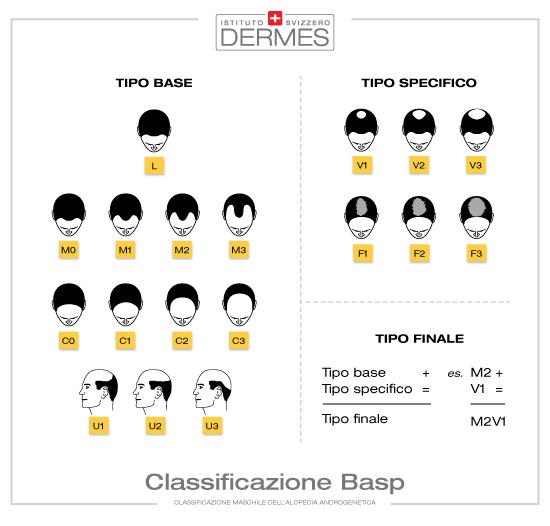 classificazione BASP