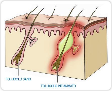 infiammazione ai follicoli, prurito cuoio capelluto e dolore dovuto al sebo in eccesso
