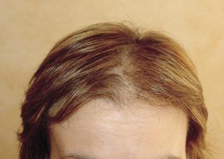 defluvio-perdita-capelli