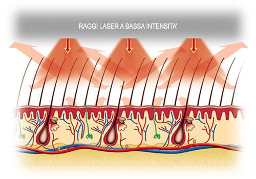 laserterapia per curare i capelli