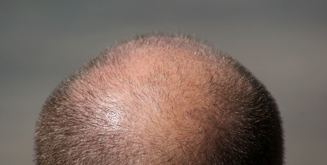Alopecia-androgenetica-calvizie