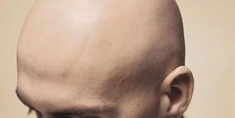 alopecia caduta capelli