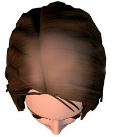 alopecia cicatriziale
