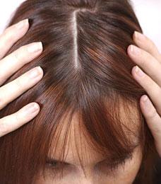 inizio di alopecia