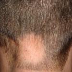 alopecia cure