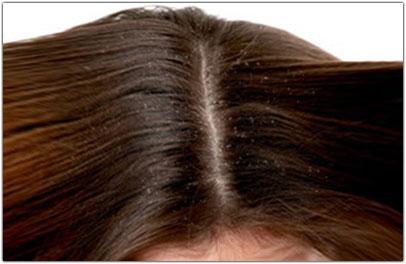 dermatite seborroica cuoio capelluto