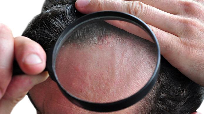 malattie della pelle simili alla psoriasi