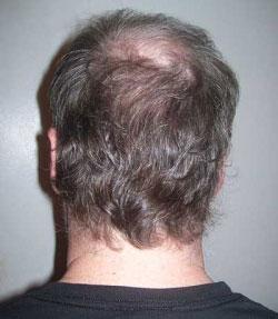 rimedio capelli