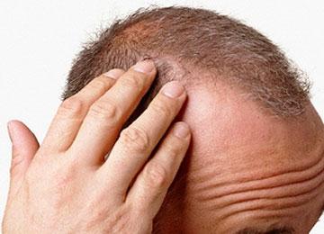 tricodinia cause dolore