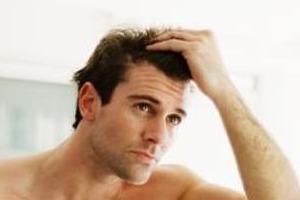 foto di un uomo con prurito al cuoio capelluto e caduta capelli