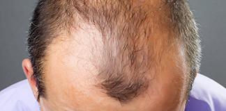 perdere-capelli-depressione