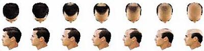 immagine della progressione della calvizie maschile causata dall'alopecia seborroica