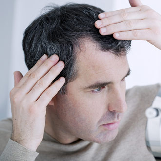 Caduta eccessiva dei capelli uomo