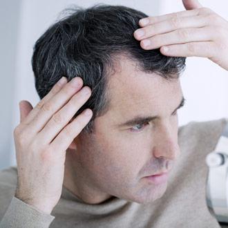 La caduta dei capelli  cause d867de1c4326