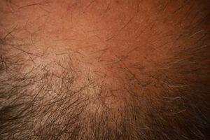 caduta-capelli-stress