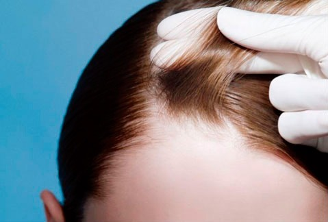 caduta capelli donne