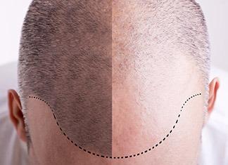 Trapianto-capelli-tecnica-FUT