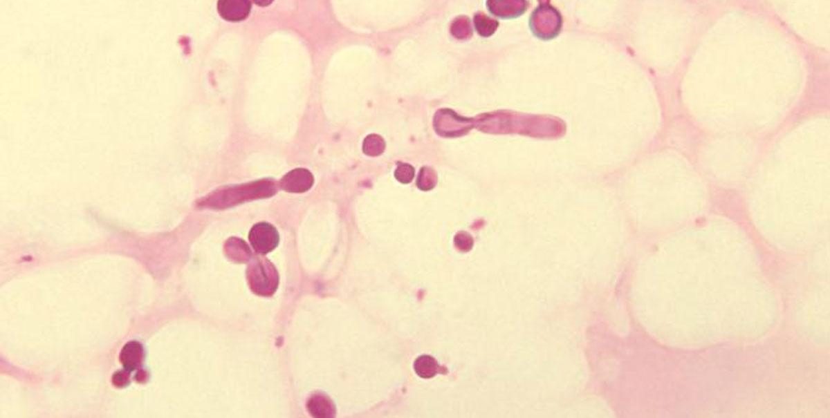 Malassezia: che cos'è e cosa causa al nostro cuoio capelluto