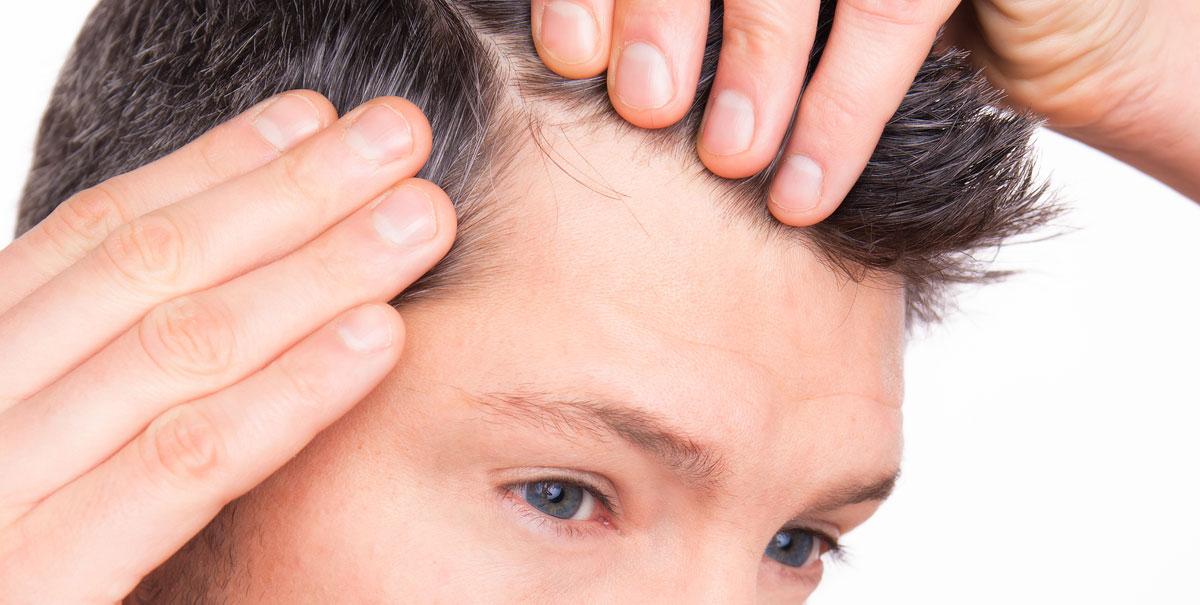Stempiatura e diradamento capelli: cause e rimedi