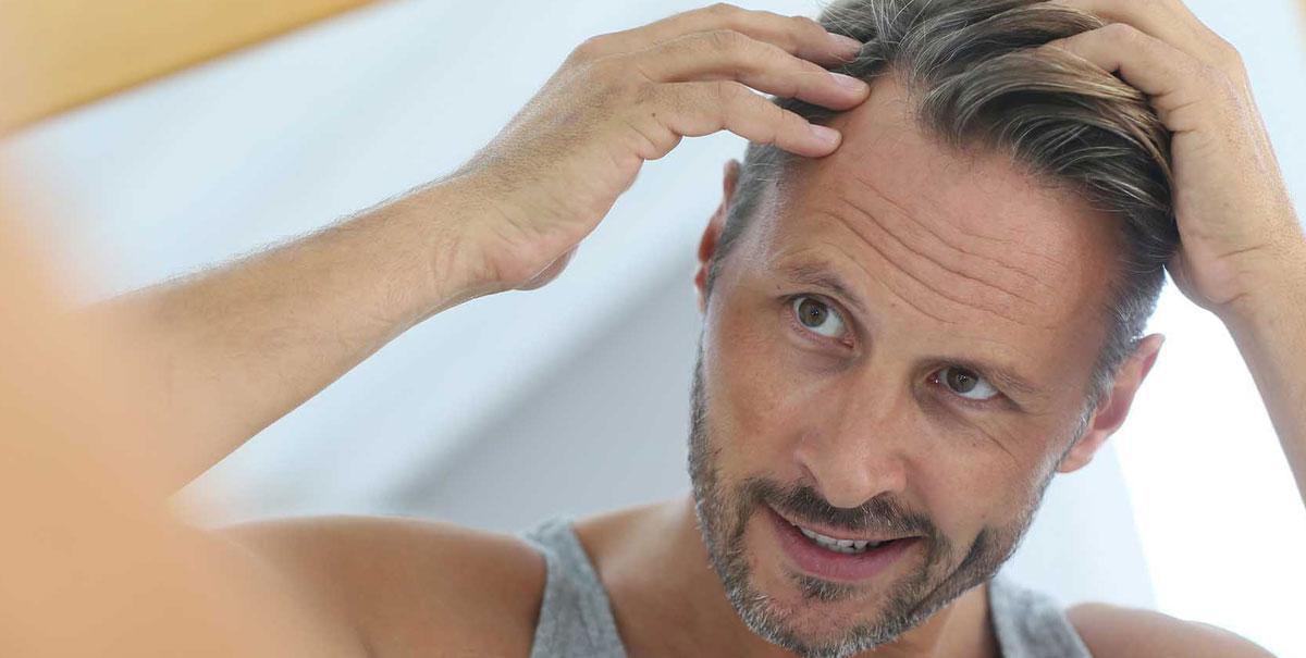 La caduta di capelli nell'uomo: cause e rimedi