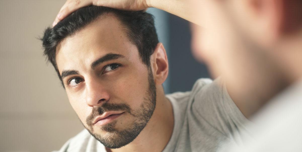 La caduta dei capelli