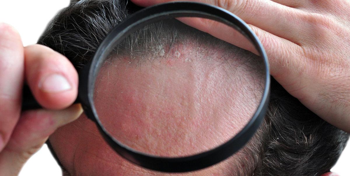 Psoriasi del cuoio capelluto