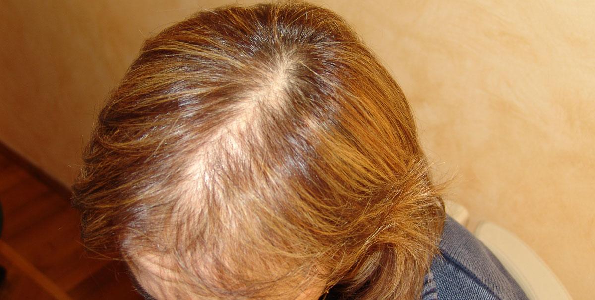 Perdita capelli – Defluvio Telogen
