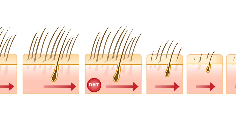 DHT (Diidrotestosterone): qual è il suo ruolo nella perdita di capelli dell'uomo?